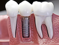 Dental Implants in Roanoke, VA